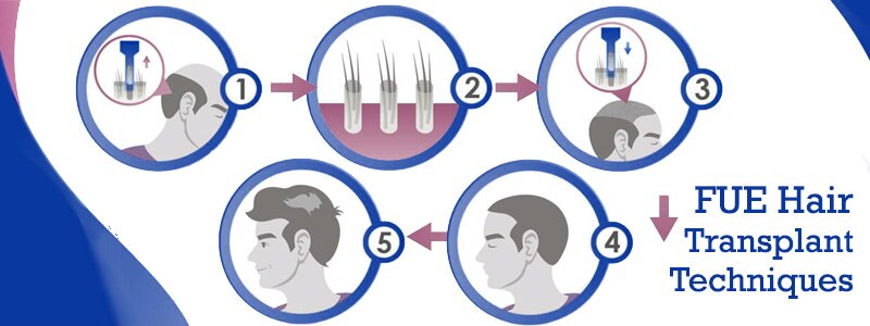 The Most Advanced FUE Hair Transplant Techniques