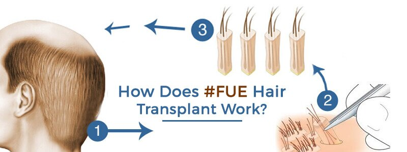 How Does FUE Hair Transplant Work?