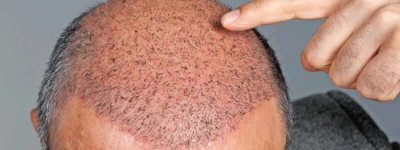 Myths About the Side Effects of Hair Transplant