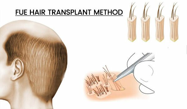 FUE Hair Transplant in Delhi,India