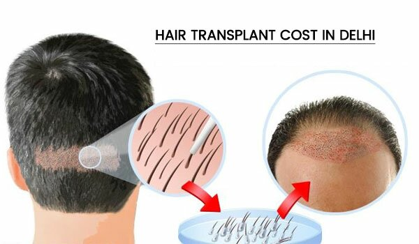 Hair Transplant Cost in Delhi,India