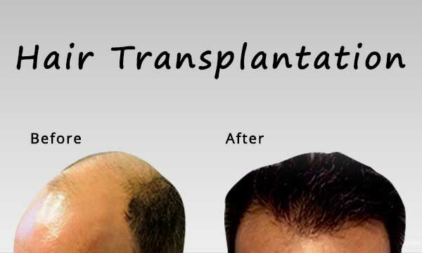 Hair Transplant Surgery for Everyone